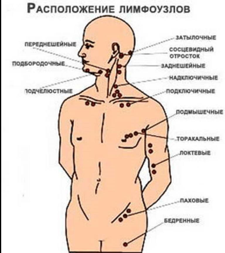 Лимфатические узлы на теле человека фото с описанием