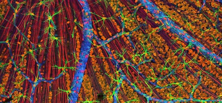 Сетчатка глаза под микроскопом